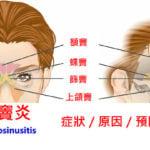 鼻竇炎的15種症狀(9種預防方法及16種致病因子)